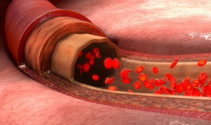 Does CBD help with blood flow?