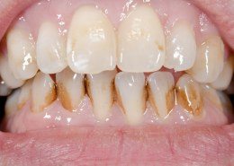Does CBD oil help with tooth decay?